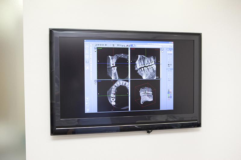 科用CT、デジタルレントゲン