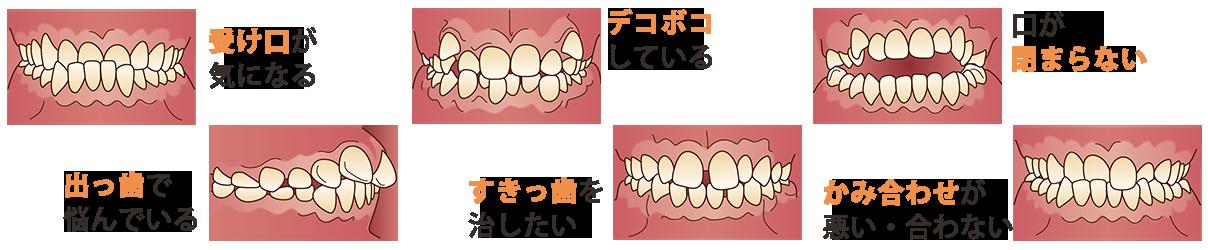 どのような歯並びでお悩みですか